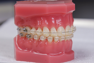 Esztétikus fogszabályzó készülék