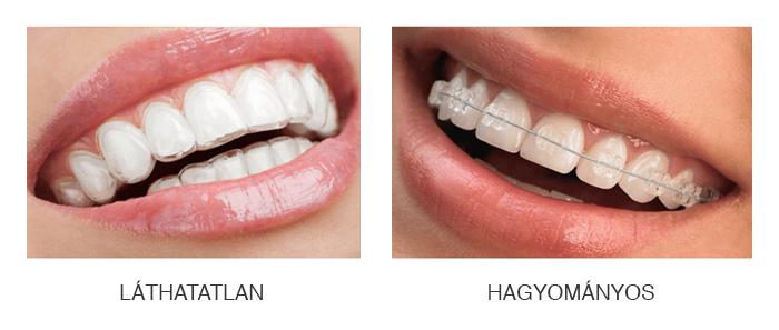 Láthatatlan fogszabályozás / hagyományos