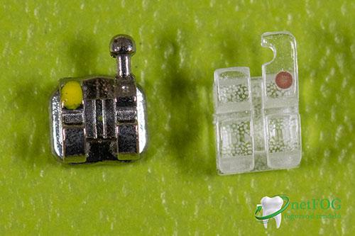 Fém és esztétikus brackett (fogszabályzó készülék része) felnagyítva