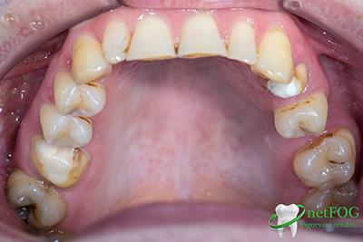 Fogkoronákhoz előkészített fogak a szájüregben