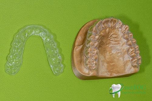 Láthatatlan fogszabályzó sín (aligner) külön és a mintára helyezve (fogakon)