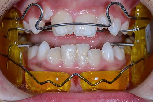 Kivehetős (fankel) fogszabályzó a szájban