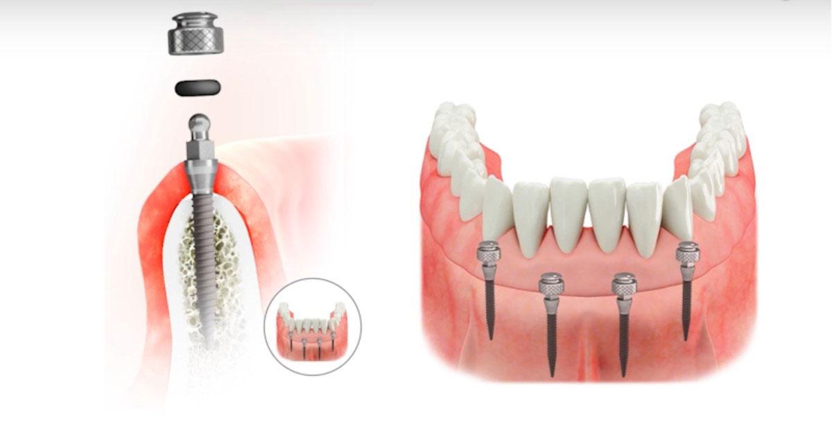 Mini implantátum és fogsor együtt