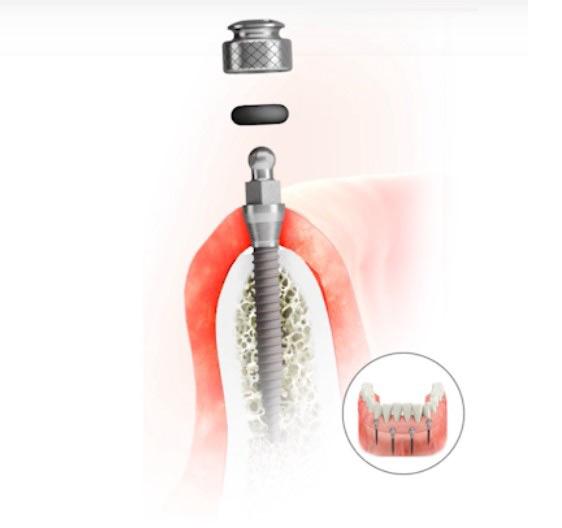 Mini implantátum és műfogsor