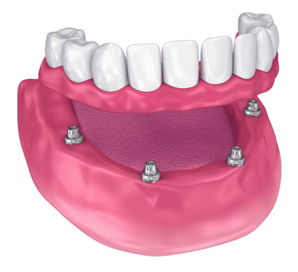 Teljes fogsor pótlása